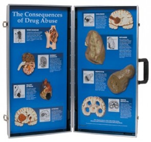 Consequences Of Drug Abuse 3d Display